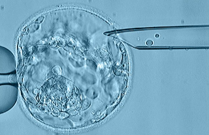 embryo biopsy